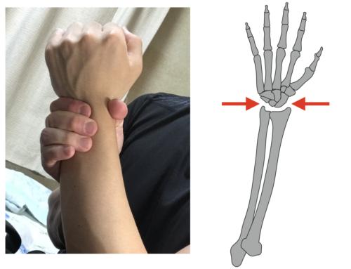 手首の痛みを取る方法 手首のケア