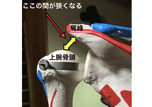 ベンチプレスでなぜ腱板断裂になる? 肩峰下インピンジメント